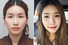 韩国丽珍整形外科与原辰医院轮廓手术哪家好?价格又是多少