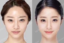 韩国专门做轮廓的医生都有谁?十年如一日这几个医生很难得!