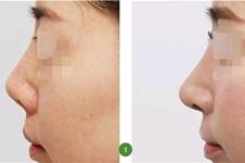 一个?鼻子顶多能做几次?在韩国做高难度?鼻修复哪家好?