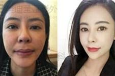 韩国擅长轮廓凹陷修复的医生有哪些?分别在哪家医院?