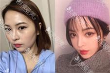 韩国曼德医院李康祐和李永泽院长分别擅长哪些手术?