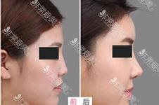 韩国专门修复鼻子医院详细名单,附均价费用+擅长医生!