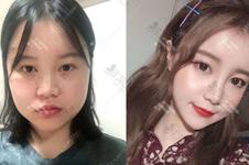 韩国富爱整形朴宰贤医生做哪些方面手术比较优秀?
