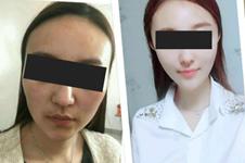 韩国脂肪填充失败修复多少钱?怎么挽救填多的脂肪