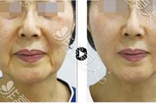 30岁做拉皮有什么影响?会不会造成皮肤进一步下垂松弛