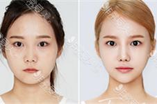 韩国朴用南切下颌角手术好不好?案例效果怎么样?