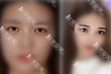 10個開內眼角9個留疤這話真不真?韓國好醫生這樣避免疤痕