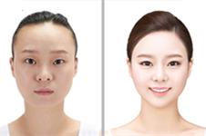 dream整形很贵吗?在韩国梦想医院手术什么价位?