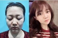 韩国微塑整形外科长期招募轮廓模特&五折吸脂模特!!!