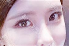 网红双眼皮一般多宽?双眼皮6 7 8毫米效果大不相同,你知道吗