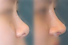 不整形怎樣改變蒜頭鼻?隆鼻隱形神器這么牛韓國怎么不用?