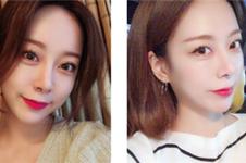电眼大开!韩国开外眼角手术新一批案例共享,姐妹看过来!