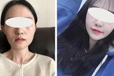 2021韩国10大整形医院名单公布!揭秘韩国整形医院当下实情!