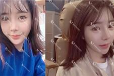 2021韩国隆鼻医院排行公布!告诉你韩国隆鼻医院哪个好