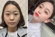 韩国双眼皮整形医院哪家好?通过这5家真人案例您自然明了