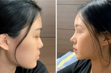 韩国隆鼻多少钱?韩国隆鼻医院哪个好?得先看看案例吧!