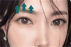 韩国眼综合问题合集:从推荐医院到医生再到费用统统告诉你