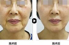 韩国面部提升超新手术是什么?多家韩国医院抗衰新术式揭晓
