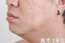 有人去过韩国治痘坑的吗?有韩国治疗痘坑成功的案例吗?