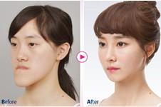 韩国哪家做双颚手术好?论技术双鄂手术中国做得好还是韩国?