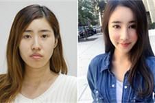 2021韩国轮廓手术好的医生VS国内好的轮廓医生,孰好?