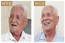 湛江種植牙哪里比較好?分享致美口腔90歲老人全口種植案例!
