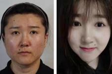 韩国贝缇莱茵VS爱她ATOP整形医院,哪家做面部吸脂实力强?