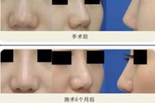 日本银座S美容形成外科酒井直彦做鼻子自然吗?