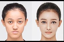 韩国面部轮廓哪家技术好,佰诺佰琪真人案例看一看