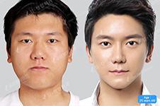 韩国必妩面部提升做的怎么样,哪种方法更快速、更安全?