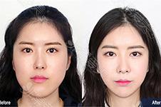 韩国面部脸型轮廓三件套包含什么?多少钱能做哪里好?