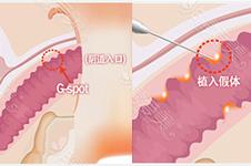韩国私密整形分析:玻尿酸打在G点上好吗能维持多久?