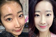 韩国皮肤科能治好痘痘吗?满脸都是闭口要多少钱?