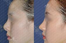 高难度鼻修复医生系列:鼻子做不好多久能修复,价格如何