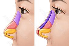 隆鼻前你应该要知道:初鼻做什么材质的好?做肋骨鼻好吗