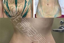 腰腹环吸一个月的图片对比,腹部环吸真心后悔啊!