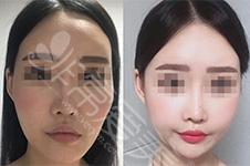 分享一组韩国长脸整容...