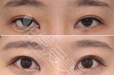 分享几组韩国soonplus金顺东院长双眼皮修复案例照片