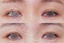 听说修复双眼皮都去韩国?那么在韩国修复双眼皮多少钱?