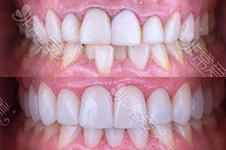 为了牙齿矫正拔牙好吗?矫正牙齿不一定都要拔牙!