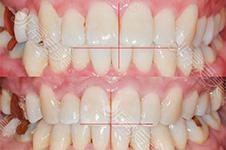 40多岁中年妇女被儿媳拉着去做矫正牙齿,效果出乎意料!