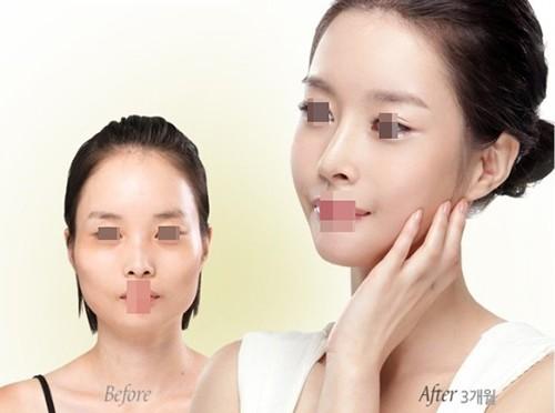 在韩国整容换一张脸要多少钱?男性女性花费是不是一样?
