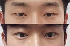 韩国做眼睛哪家医院强?这几家做眼睛放大效果超好!