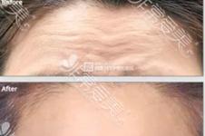 眼部松弛有细纹怎么办?韩国MVP整形童颜术告诉你答案!