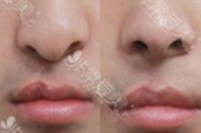 在韓國唇腭裂手術需要做幾次?唇腭裂整形效果怎么樣?