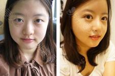 韩国下颌角整形口碑好的医院有哪些?下颌角整形多少钱?