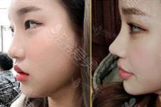 韩国mesh隆鼻材料怎么样?mesh隆鼻手术后会引发感染吗?