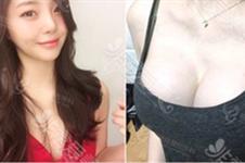 做了乳房重建后悔了?乳房再造手术有什么副作用?