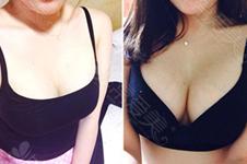 隆胸假體能被摸出來嗎?韓國隆胸后會很容易摸到假體嗎?