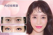 韓國無痕去眼袋怎么做?隱蔽位置會有切口你知道嗎?